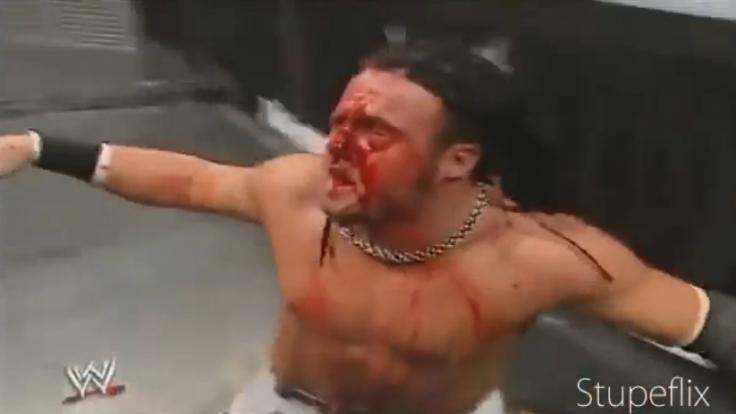 Joey Mercury (Adam Birch) bekam ungeschützt eine Leiter ins Gesicht.