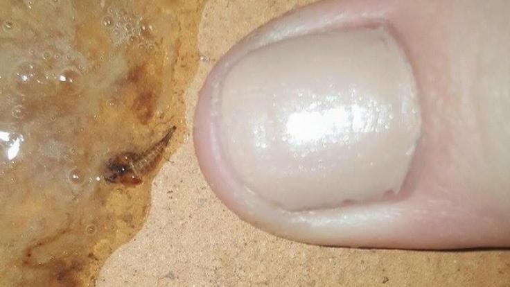 Ein australisches Mädchen hustete diesen Parasiten aus.
