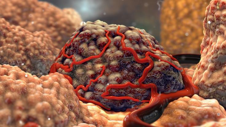 Grusel-Tumor: Ärzte entfernen bei Baby Gehirntumor mit