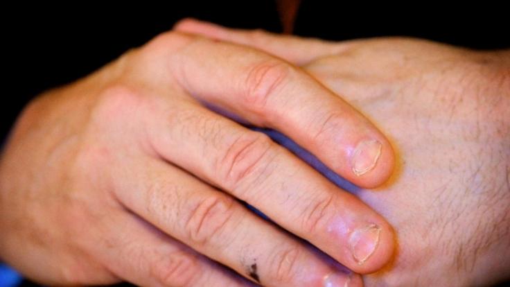 Experten halten das Fingerknacken für alles andere als einen harmlosen Tick. (Foto)