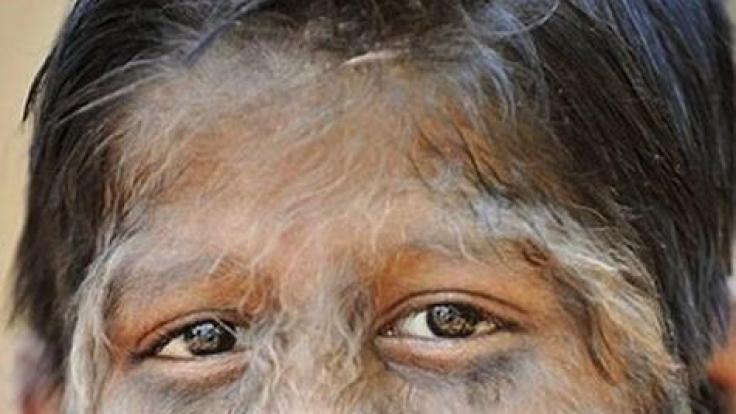 Gegen diese Krankheit ist kein Kraut gewachsen. Die Haare lassen sich auch nicht einfach entfernen.