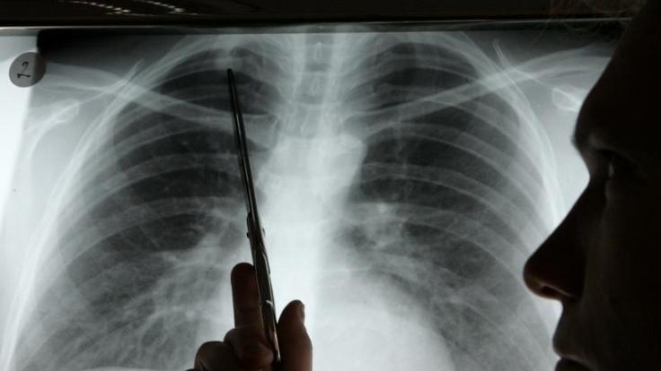 Neue Therapie gegen Lungenkrebs (Foto)