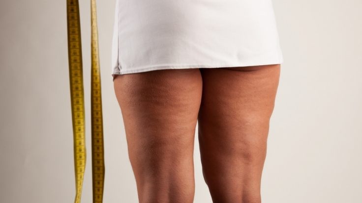 Unzählige Frauen leiden an der Stoffwechselkrankheit Lipödem. (Foto)