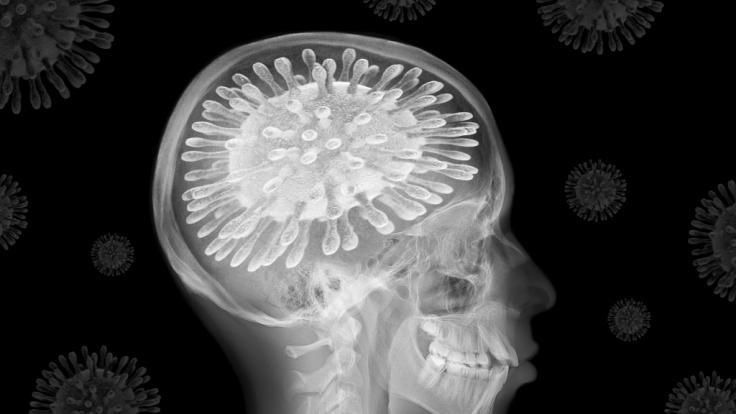 Laut einer neuen Studie nimmt durch eine Coronavirus-Infektion die Gehirnleistung ab. (Symbolfoto) (Foto)