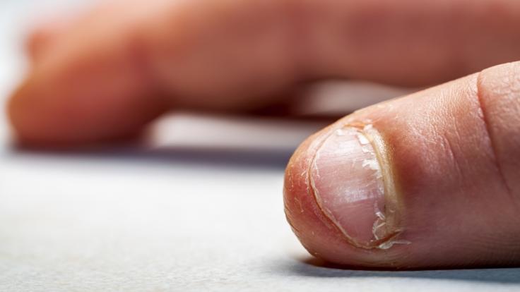 Nägelkauen ist mehr als eine lästige Angewohnheit und kann sogar tödlich enden (Symbolfoto).