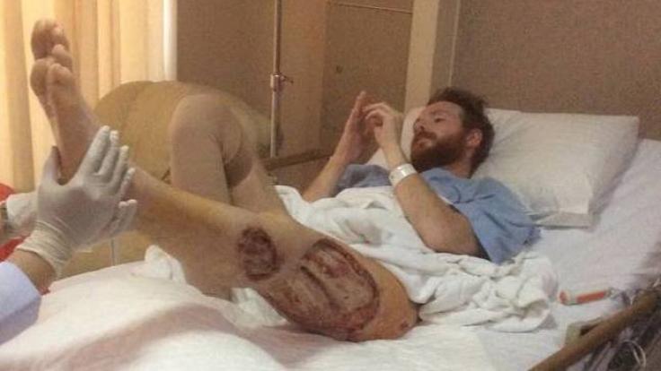 Das Bein von Ben Whiteside wurde von Bakterien zerfressen!