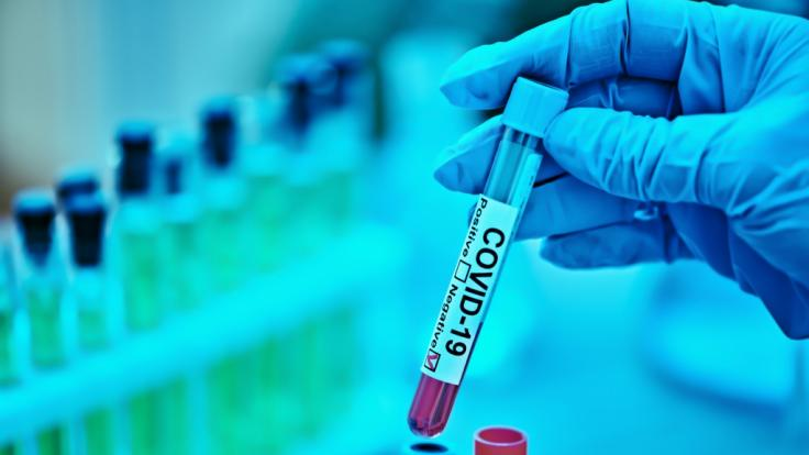 Wurde Sars-CoV-2 im Labor entwickelt? (Foto)
