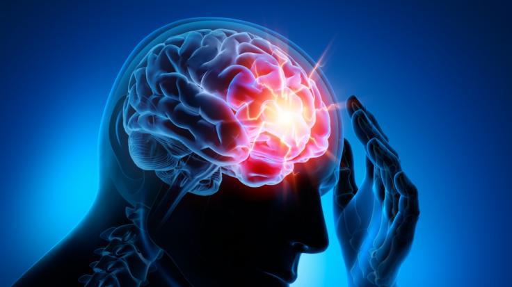 Ärzte verzeichnen mehr Schlaganfälle bei jüngeren Covid-19-Patienten. (Symbolfoto)