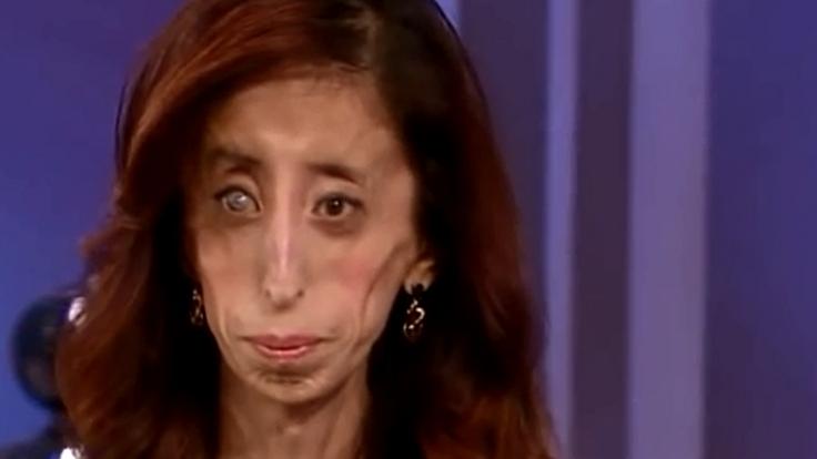 Texanerin Lizzie Velasquez hat null Prozent Körperfett.