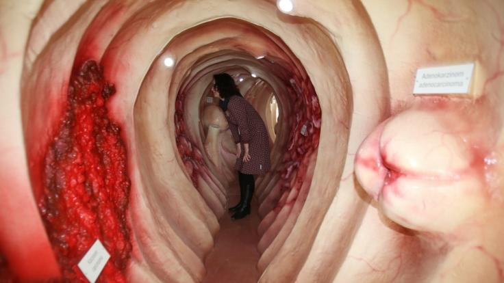 Begehbares Modell eines Darms: Wie halten Sie ihn gesund?