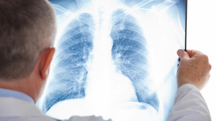Der britische Radio-Moderator James Whale kämpft unter anderem gegen Lungenkrebs (Symbolbild).