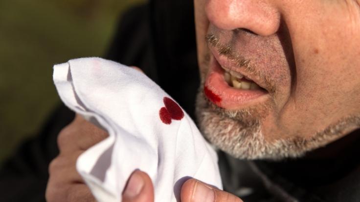Blutiger Auswurf beim Husten gilt als typisches Anzeichen für Tuberkulose.