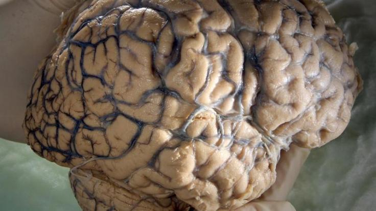 Oberhansley aß Gehirn, Herz und Lunge der Frau.