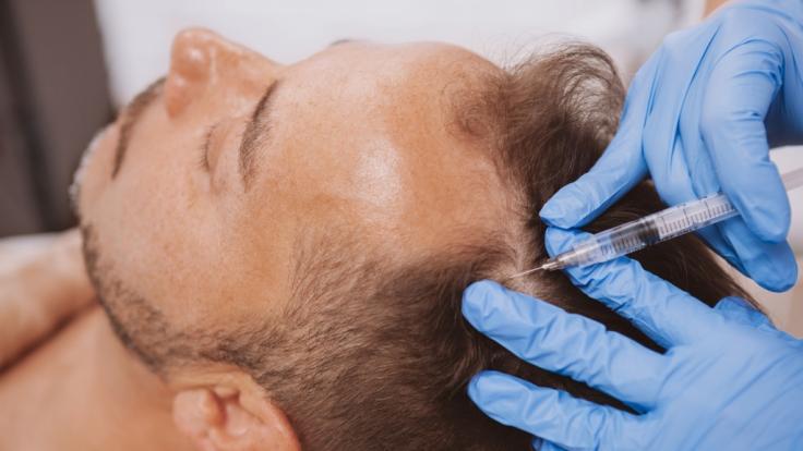In Istanbul kam ein Mann offenbar während einer Haartransplantation ums Leben. (Foto)