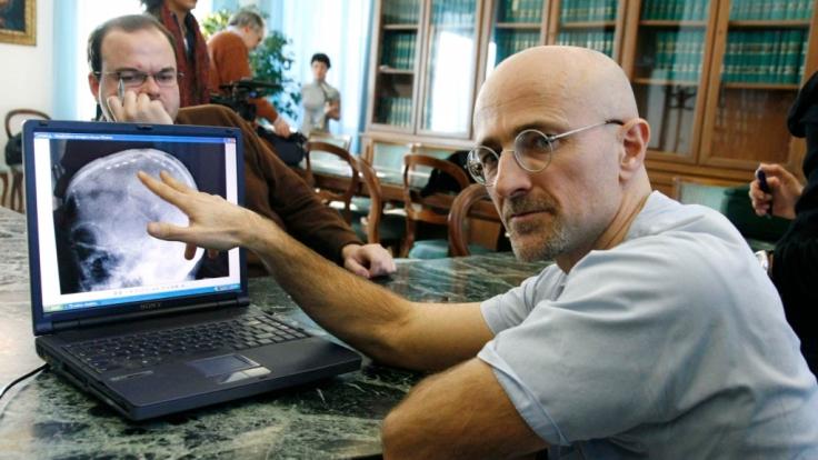 Der Chirurg Sergio Canavero möchte den Kopf eines Menschen transplantieren. (Foto)