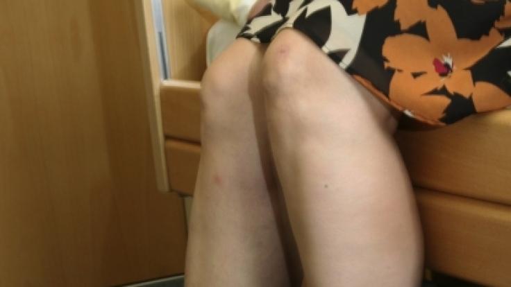 Weil die Beine in Ruhephasen anfangen zu zappeln, rauben sie den RLS-Patienten den Schlaf.