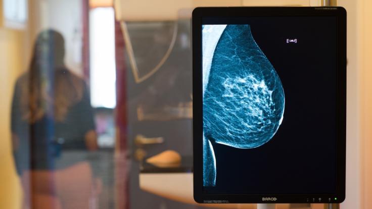 Jahr für Jahr erhalten rund 69.000 Frauen die Diagnose Brustkrebs. (Foto)