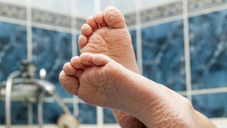 Warum schrumpelt die Haut, wenn man badet? (Foto)