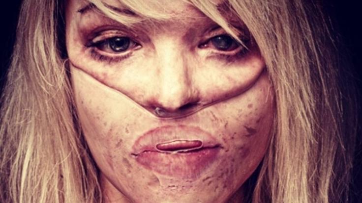 So sah Katie Piper kurz nach dem Säure-Angriff aus. (Foto)