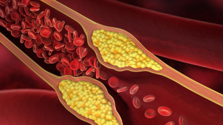 Jeder dritte Deutsche hat einen überhöhten Cholesterinspiegel.