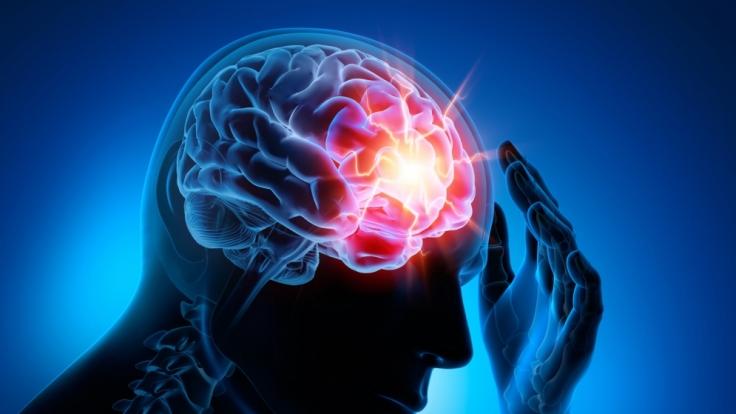 Durchblutungsstörungen im Gehirn: Wie kommt es zu der Erkrankung ...