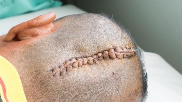 Ein Pferd hat einer Frau den Schädel zerschmettert. Sie hat überlebt. (Symbolfoto) (Foto)