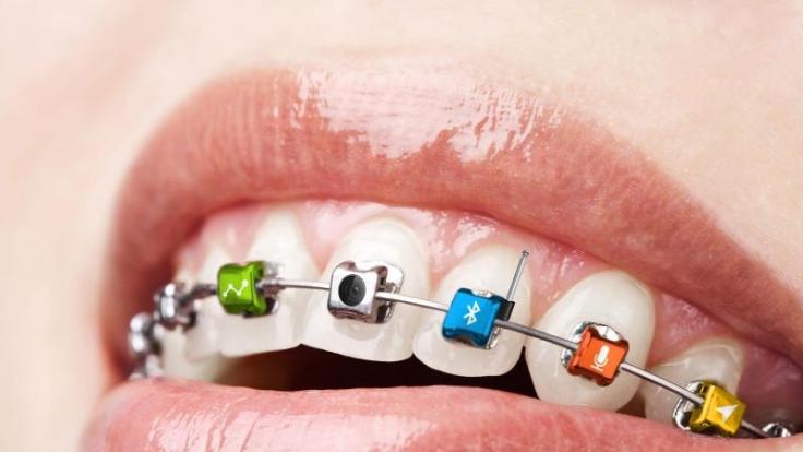 Nette Idee, aber totaler Quatsch: Microsoft kündigte am 1. April einen Zahnspange an, die Fotos machen und per Bluetooth übertragen kann.