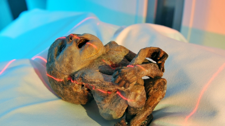 Das Bild zeigt einen mumifizierten Fötus aus dem frühen 18. Jahrhundert. (Foto)