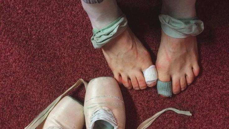 Darian Volkovas Füße leiden sichtlich unter dem Balletttanz. (Foto)