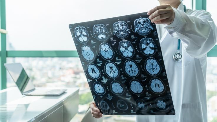 Durch eine heimtückische Gehirnentzündung lag ein 22-jähriger Mann ein halbes Jahr lang im Koma - und wachte ohne Erinnerungen wieder auf (Symbolbild). (Foto)