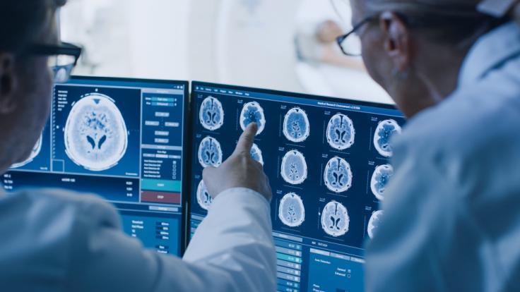 Eine unbekannte Gehirnerkrankung besorgt gerade kanadische Neurologen.