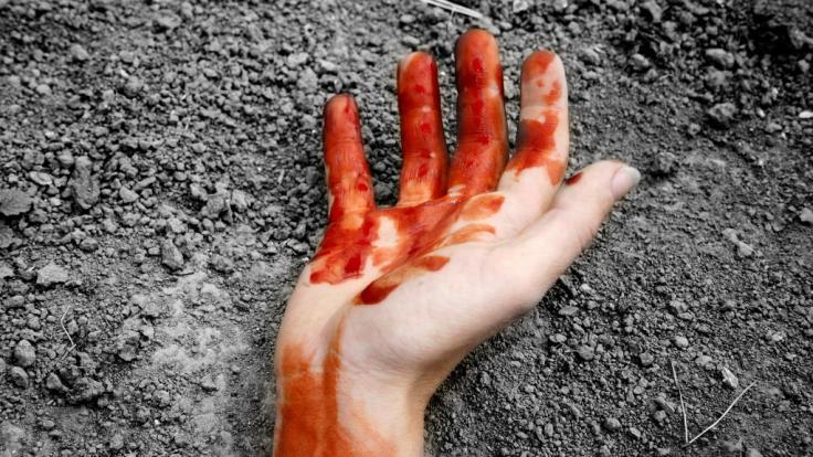 Ein nackter Mann mit einer abgetrennten Hand sorgte im englischen Grimsby für Aufruhr (Symbolbild). (Foto)