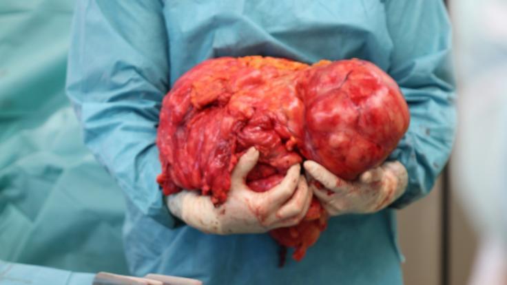 Der Tumor brachte stolze 15 Kilo auf die Waage. (Foto)