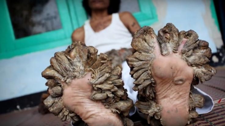 """Sein Leiden hat nun ein Ende: Dede Koswara, der """"Baum-Mann"""", ist tot. (Foto)"""