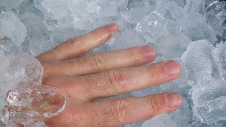 Coole Lösung:Bei Quetschungen ist Kühlung die effektivste Therapie.