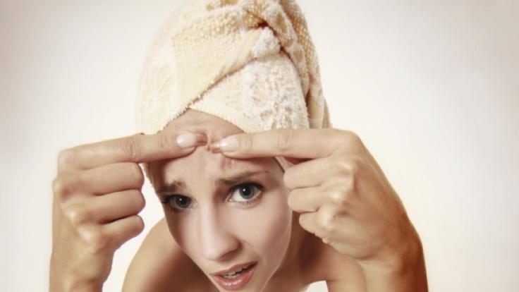 Zahnpasta ist ein zuverlässiges Mittel gegen Pickel, so die landläufige Meinung - doch was ist dran am Mythos?