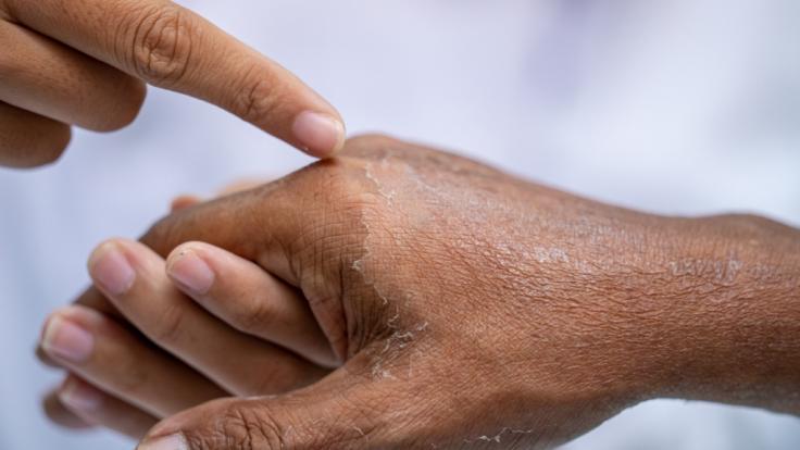 Ein zehnjähriger Junge aus Indien häutet sich aufgrund einer seltenen Krankheit aller paar Wochen (Symbolfoto). (Foto)
