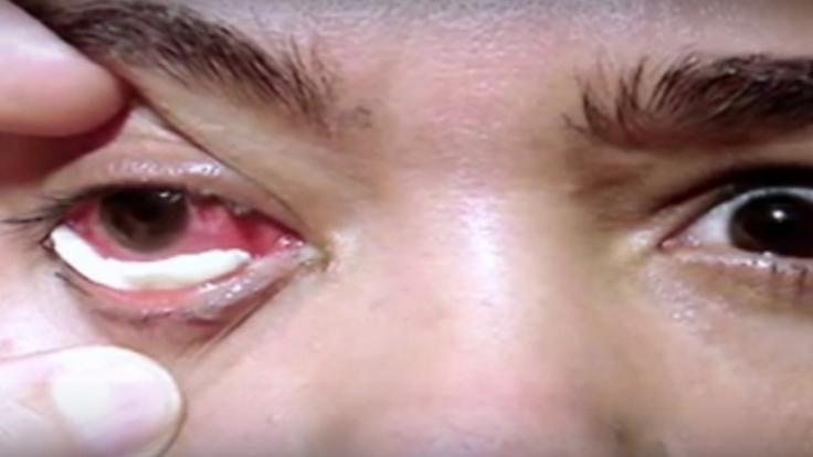 Die weißen Kristalle sind sehr hart und Schmerzen im Auge.