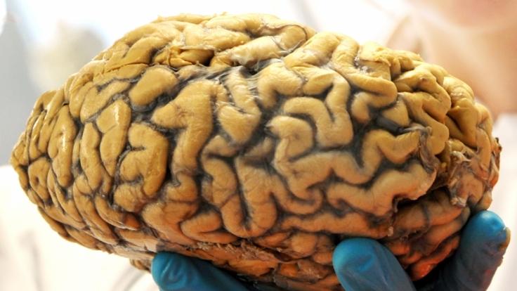 Ein Wissenschaftler hält am 21. Februar 2013 im Institut für Anatomie der Universität Leipzig (Sachsen) ein menschliches Gehirn in seiner Hand.