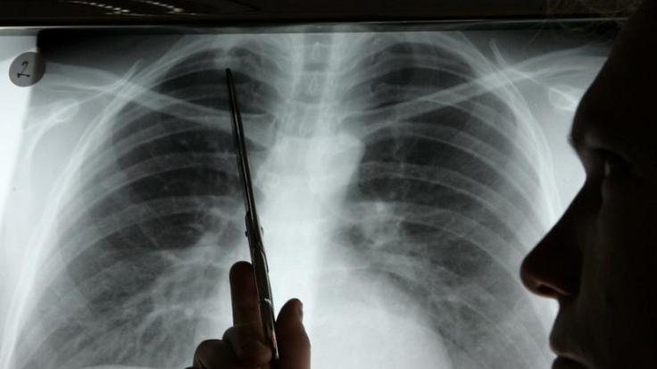 Lungenkrebs endet in den meisten Fällen tödlich. (Foto)