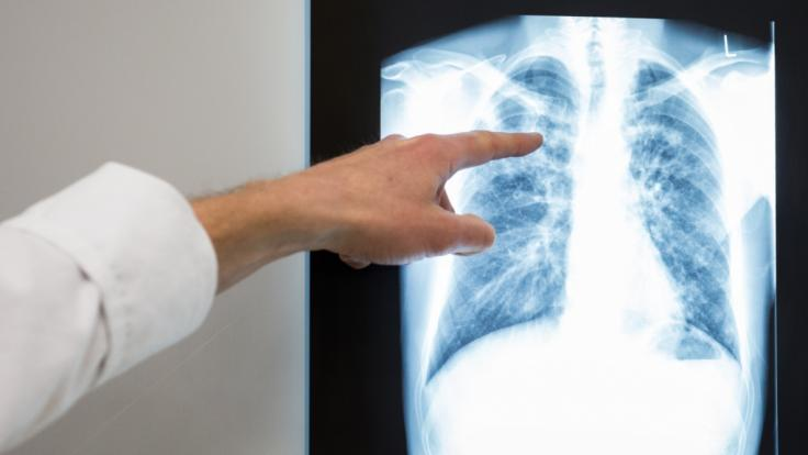 In Kalifornien hat sich ein Mann wortwörtlich die Lunge aus dem Leib gehustet. (Symbolfoto)