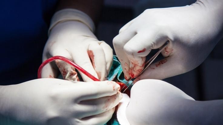 In Indien erhielt ein Zweijähriger mit drei Penissen eine Korrekturoperation. (Foto)