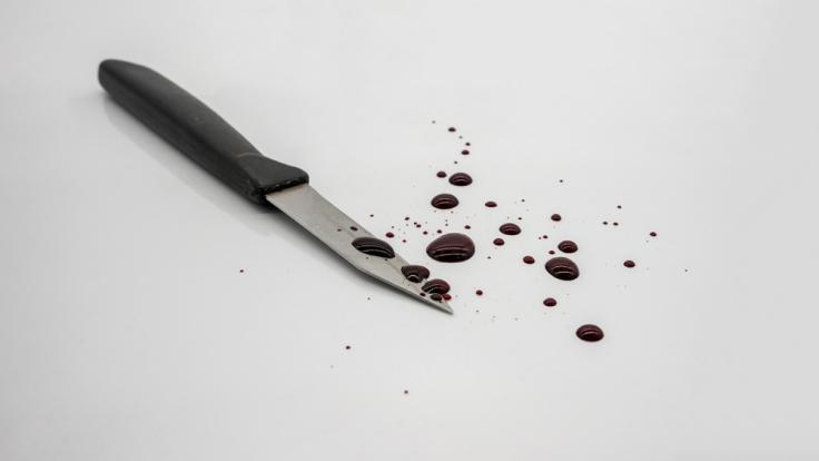 Bei einer Messerattacke in Essen wurde eine Frau schwer verletzt. (Foto)