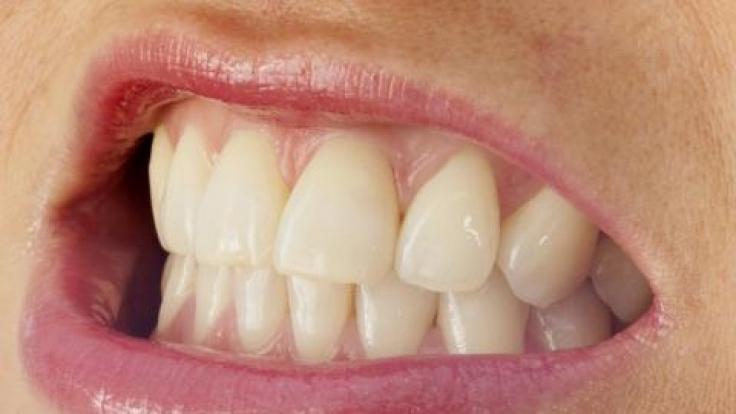 Tagsüber wird gepresst, nachts geknirscht: Ein schmerzender Kiefer oder sogar abgeriebene Zähne sind die Folgen.