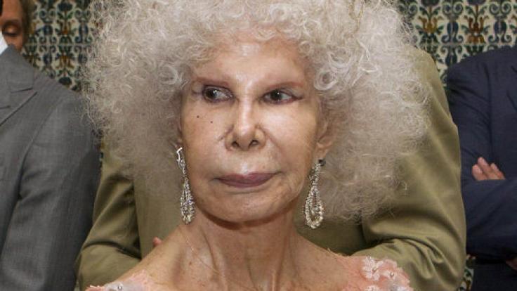 Herzogin Alba ist das Beispiel für misslungene Schönheits-OPs. (Foto)