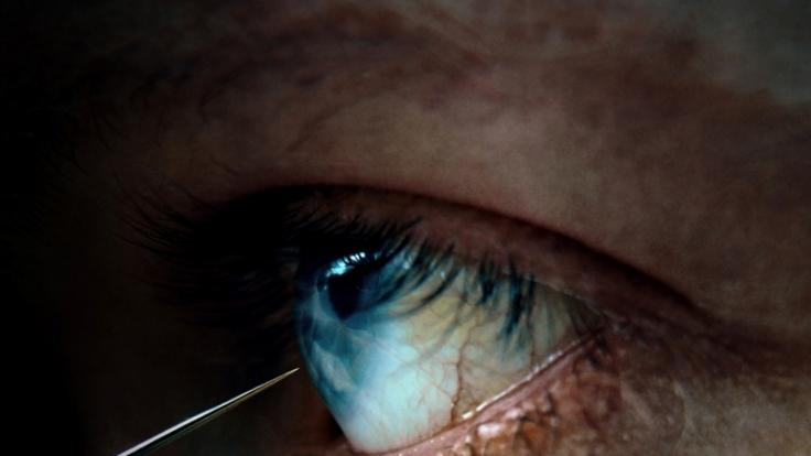 Bei der transorbitalen Lobotomie wird ein dünner Eispickel am Auge vorbei ins Gehirn eingeführt. Durch rhythmische Bewegen sollen falsch verknüpfte Nervenbahnen getrennt werden.