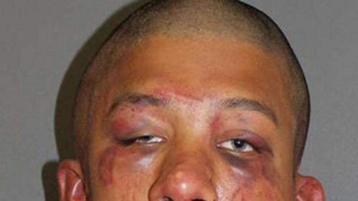 Raymond Frolander nach der Behandlung durch den Vater seines Opfers.